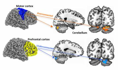 overconnections-between-cerebellum-cerebral-cortex-autism